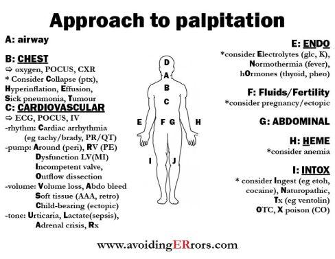palpitation